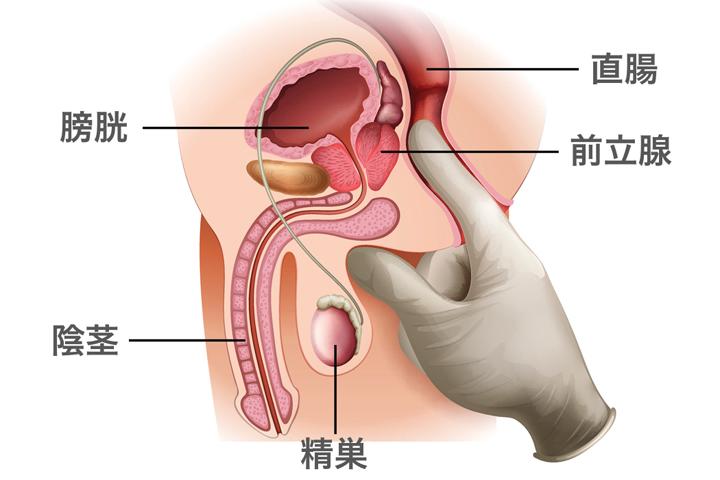 前立腺刺激